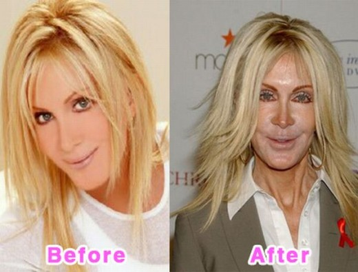 10 Most Terrible Celebrity Plastic Surgery Disasters