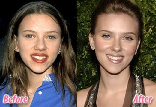 Top 10 Celebrities Before and After Surgery